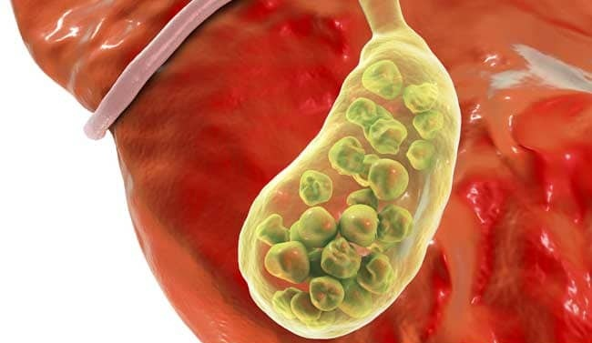 Gall bladder and general surgery