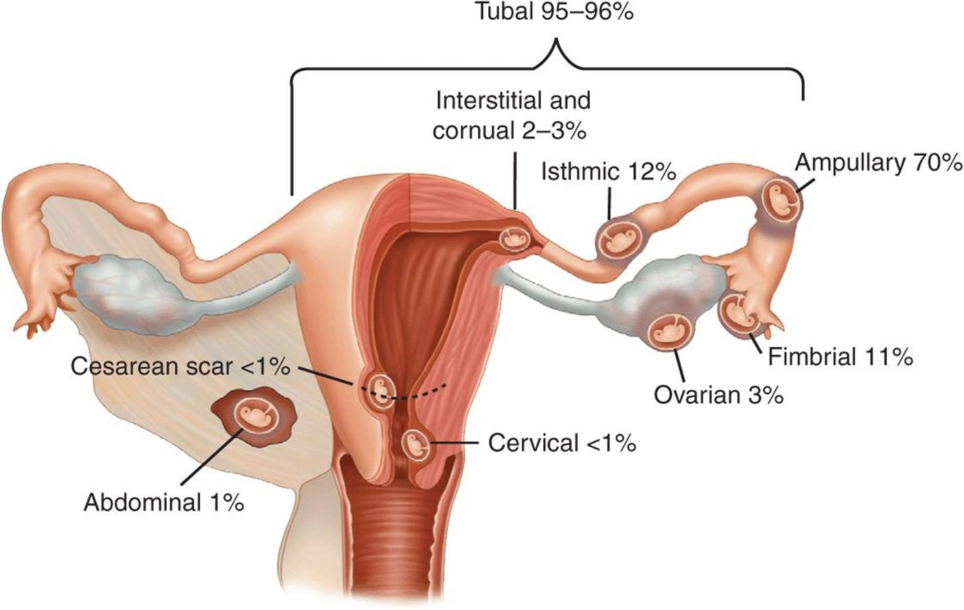 ectopic pregnancy symptoms